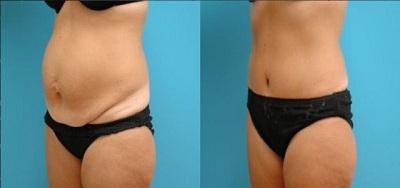 Chirurgie reparatrice ventre Tunisie