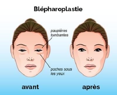 blepharoplastie tunisie
