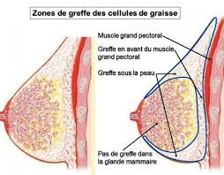 Zones de greffes des cellules de graisse Tunisie
