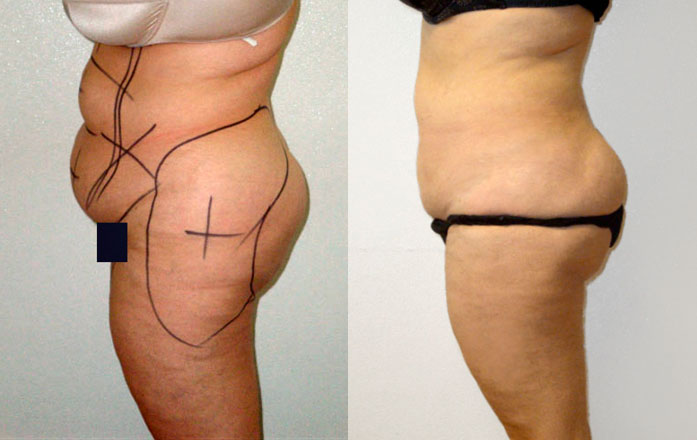 liposuccion + abdominoplastie