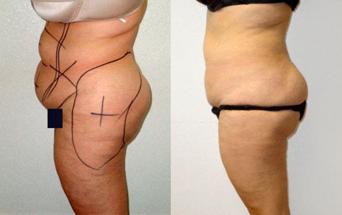 liposuccion + abdominoplastie