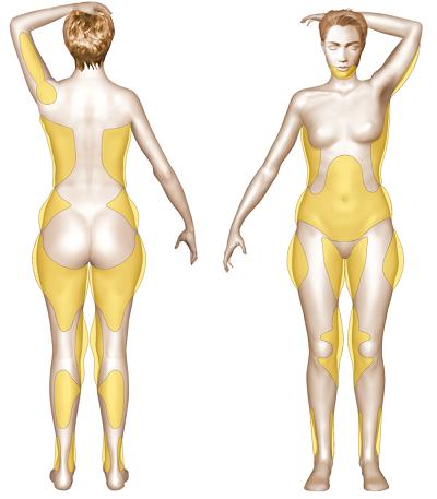 zone concernées par liposuccion