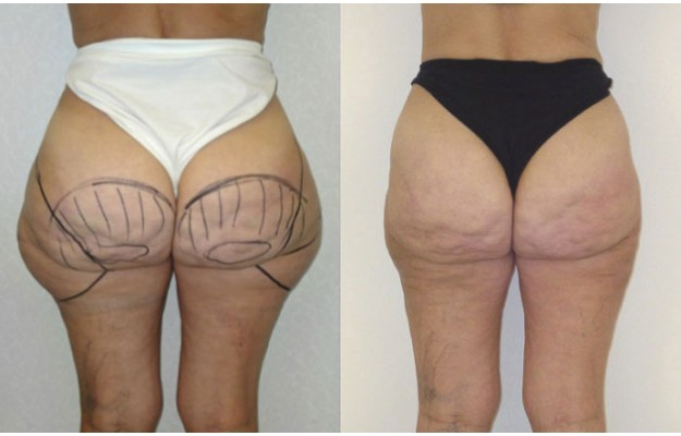 resultat liposuccion hanches
