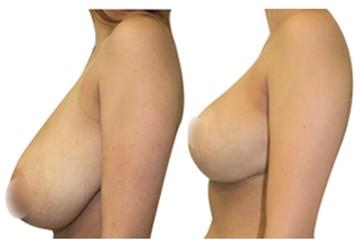 réduction mammaire tunisie prix