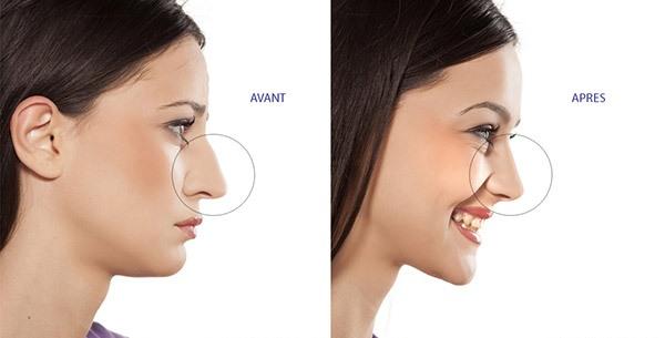 chirurgie-plastique-nez