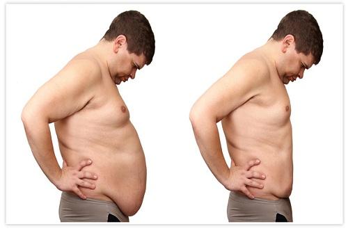 Faut-il maigrir avant une abdominoplastie ?