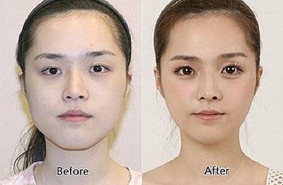 chirurgie esthetique en coree du sud