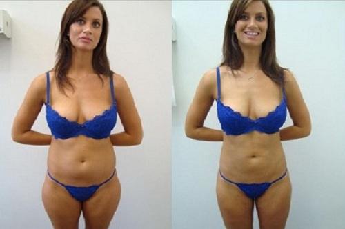 chirurgie ventre avant apres
