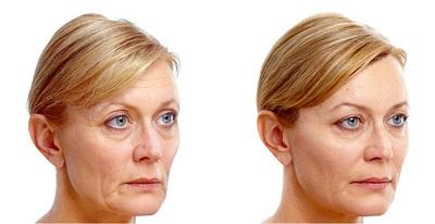 lifting et lipofilling du visage