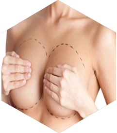 tarif chirurgie seins