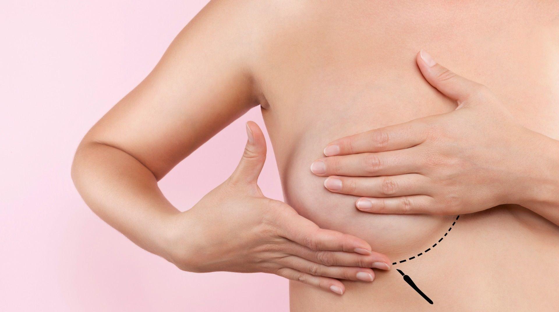 Cicatrice lipofilling mammaire