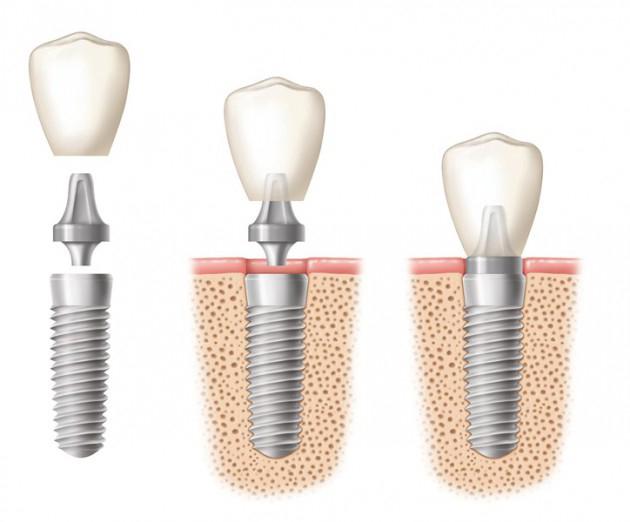 etapes pose implant dentaire