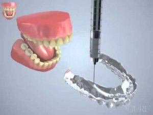 Gouttière blanchiment des dents