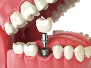 implantologie dentaire tunisie