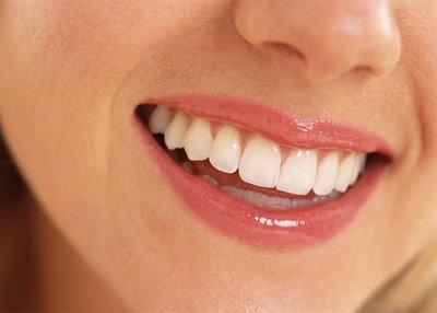 Implants dentaires : Faut-il se lancer ?