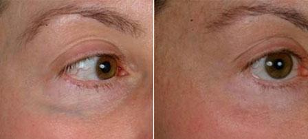 Les options de traitement pour les veines sous les yeux