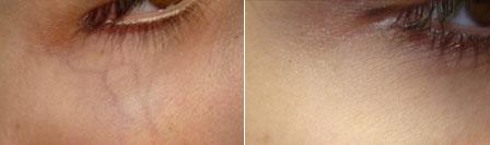 veines-sous-yeux