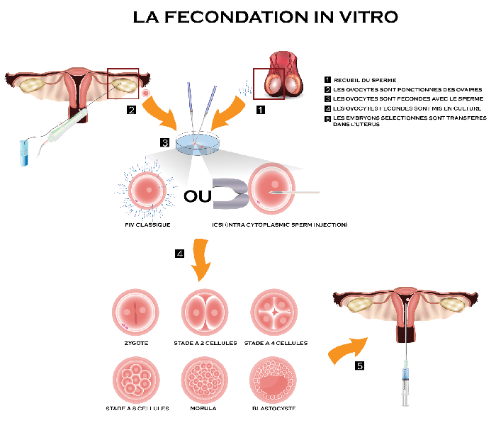 in vitro tunisie