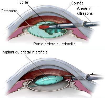 operation-cataracte-tunisie