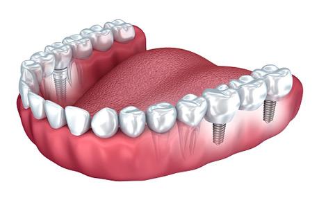 Tout ce qu'on devrait savoir avant de se faire poser un implant dentaire