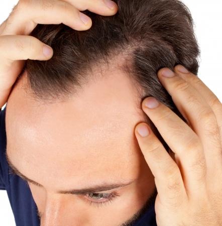 Greffe de cheveux par injecteur de choï