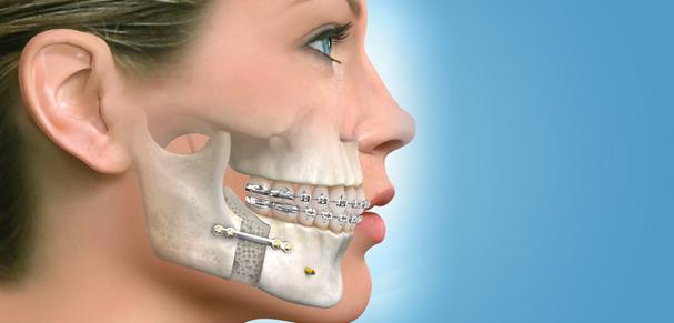 Importance de la chirurgie orthognathique pour l'adulte et l'adolescent