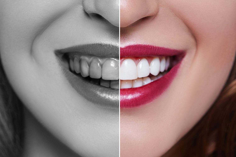 chirurgie esthétique dentaires en Tunisie